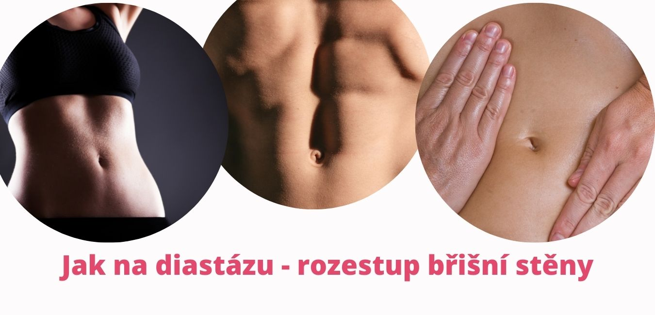 Jak na diastázu - rozestup břišní stěny - martinafallerova.cz